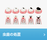 虫歯の装置