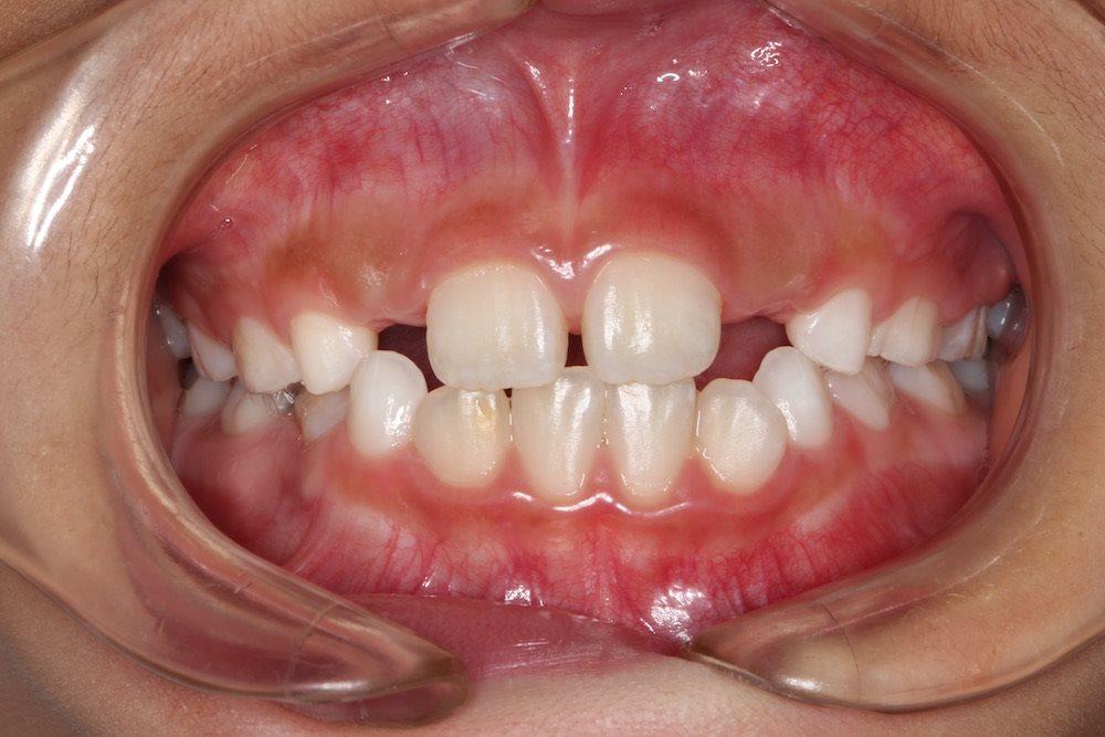小児歯科と嘔吐反射