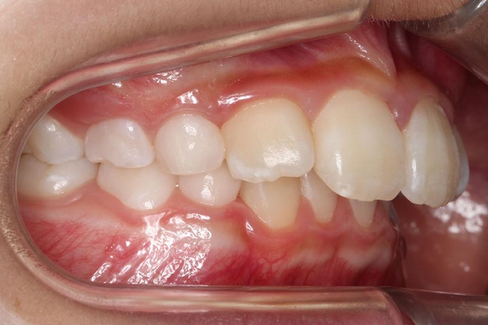 鼻づまりの悪い歯並び