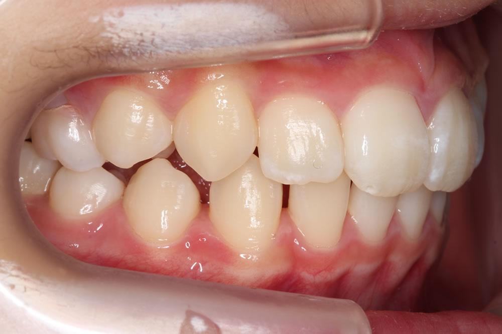 鼻づまりが改善した歯並び