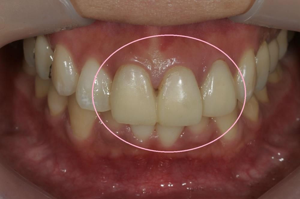 仮歯の精度の重視