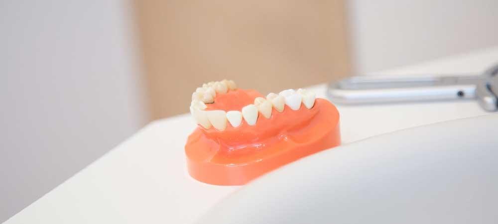 歯専門歯科技工士