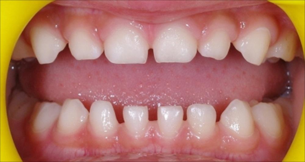 歯 乳歯 すき っ 前歯の隙間(すきっ歯)は、なぜできるの?どうしたら治るの?