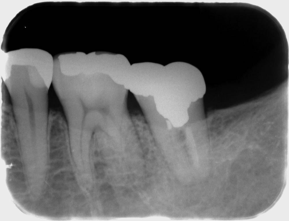 左下7  樋状根と呼ばれる複雑な形態の歯の再根管治療