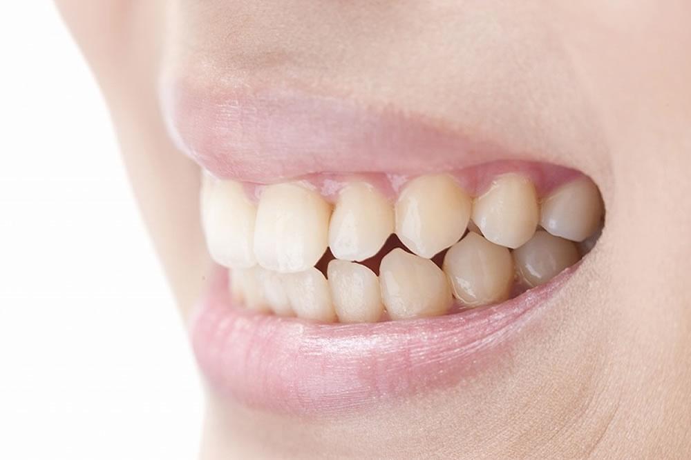 歯並び相談