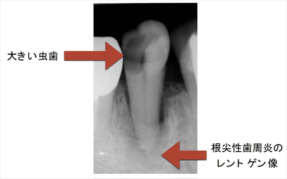 根尖性歯周炎併発の虫歯のレントゲン