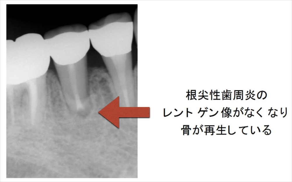歯根端切除術後1年