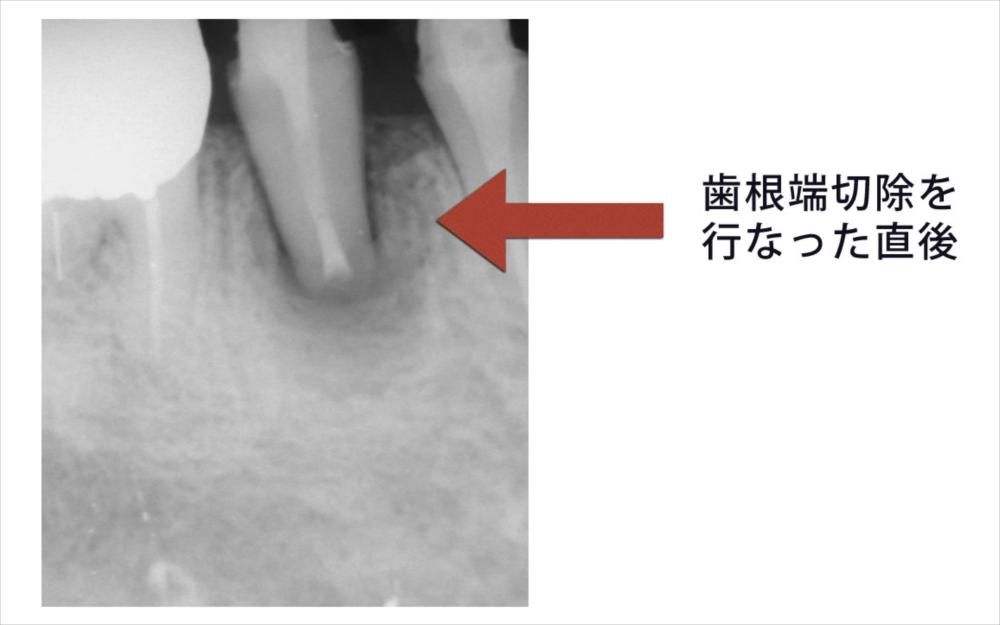 歯根端切除直後のレントゲン